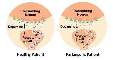 What the Parkinson's Cure May Stem From — Rice Catalyst