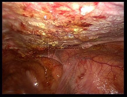 Frozen Abdomen (recent surgery at an adhesions center in