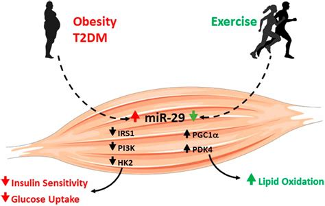 Altered miR-29 Expression in Type 2 Diabetes Influences